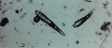 显微镜下的蠕形螨