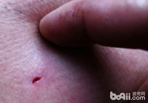被魟鱼刺伤了怎么办